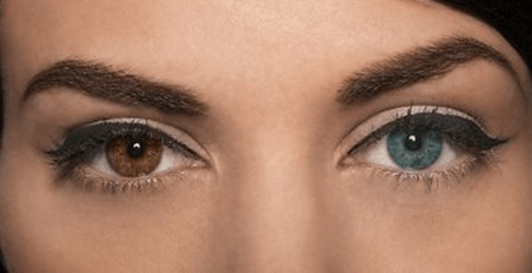 How to Lighten Your Eye Color Easily: Getting Surgery To Lighten Eye Color