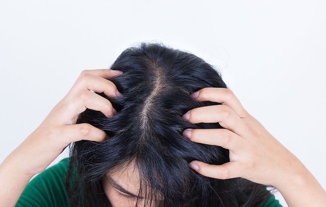 What Causes Agony To The Scalp