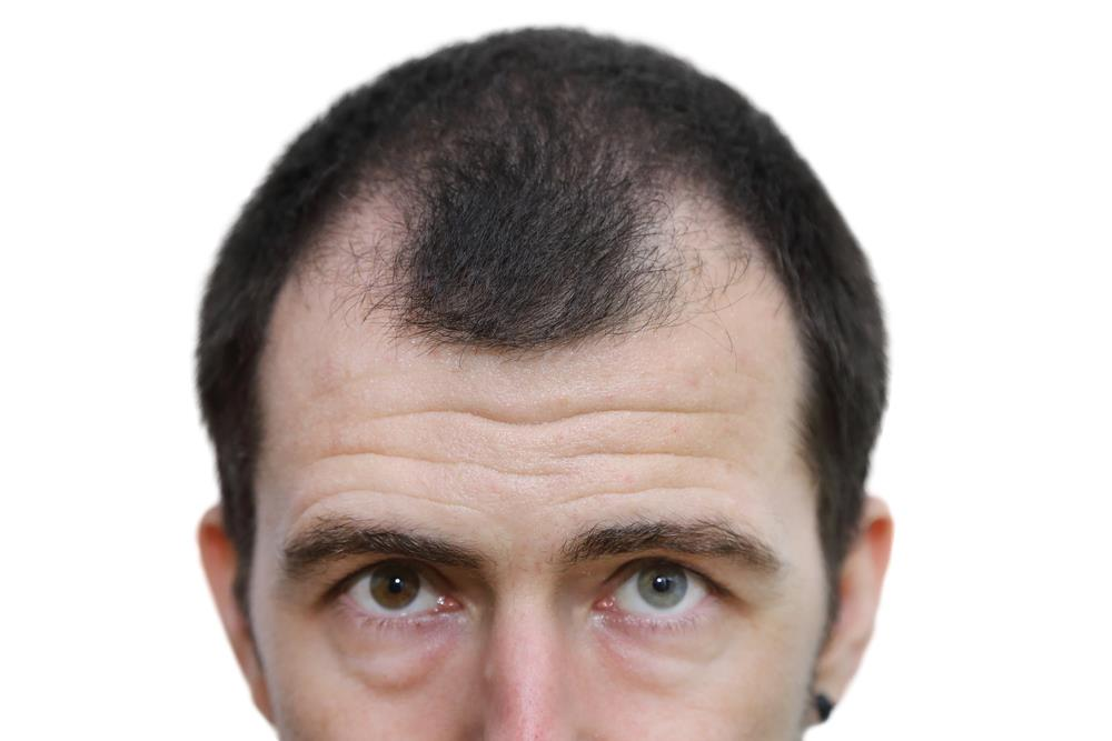 Gradual Thinning On Top Of The Head