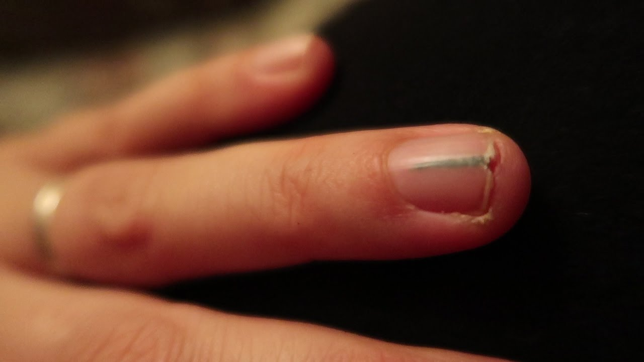 How To Get Rid Of Black Lines On Nails: The Easy Ways! - All Beauty ...