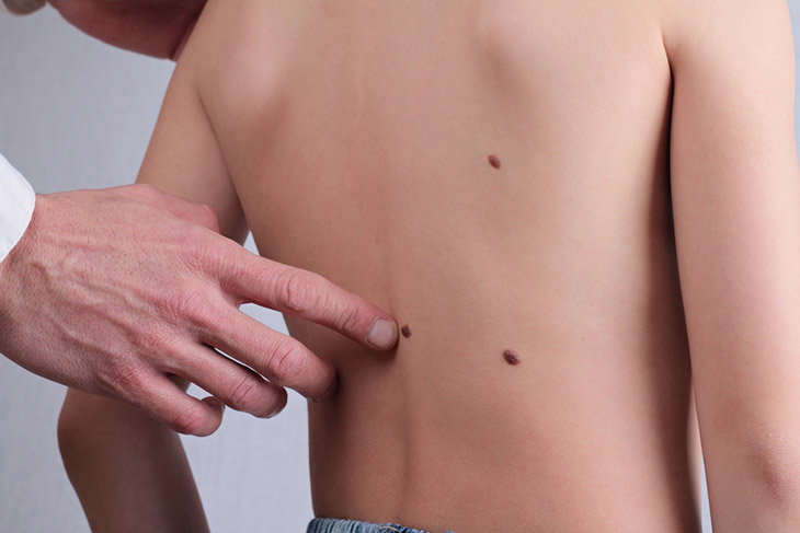 Skin Tag Myths