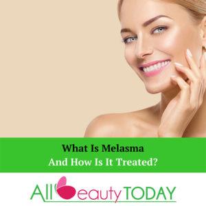 What Is Melasma