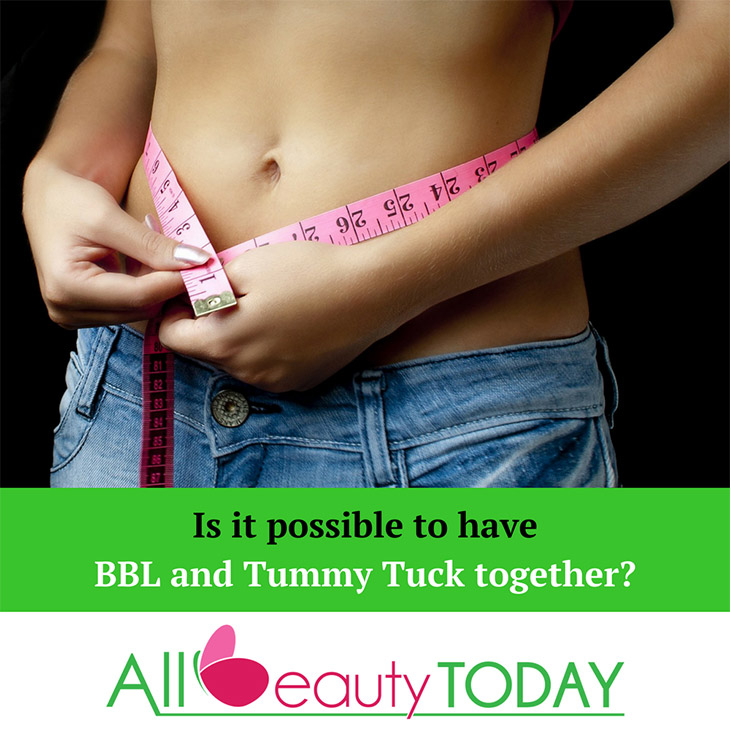 BBL and Tummy Tuck