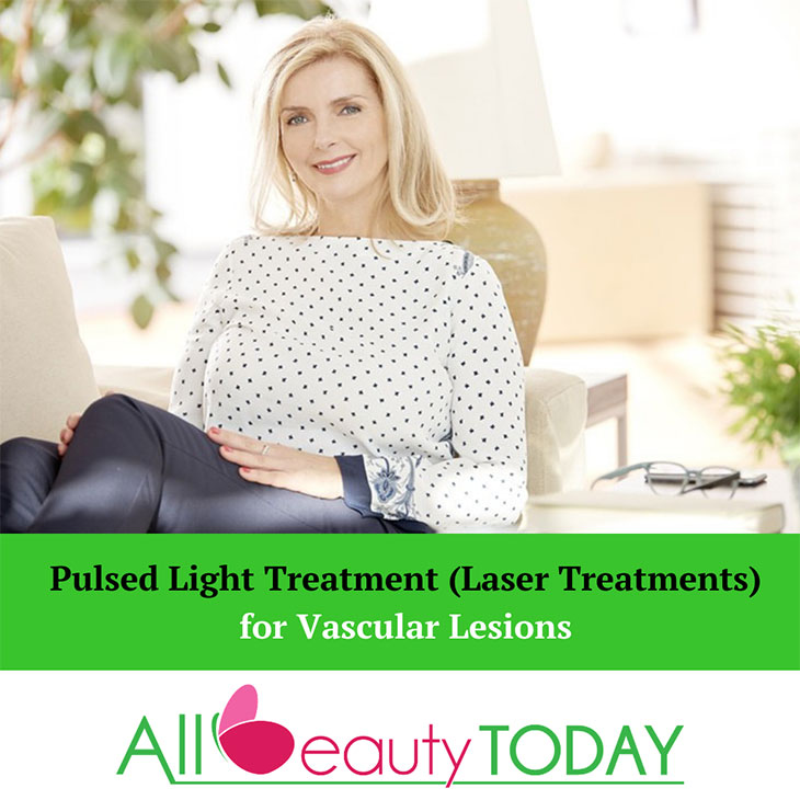 Pulsed Light Treatment (Laser Treatments) for Vascular Lesions 1