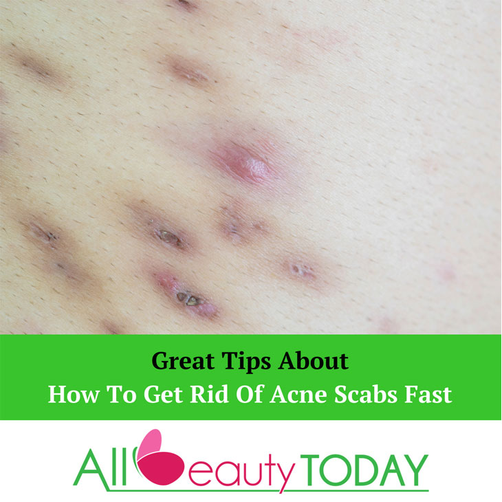 How To Get Rid Of Acne Scabs Fast