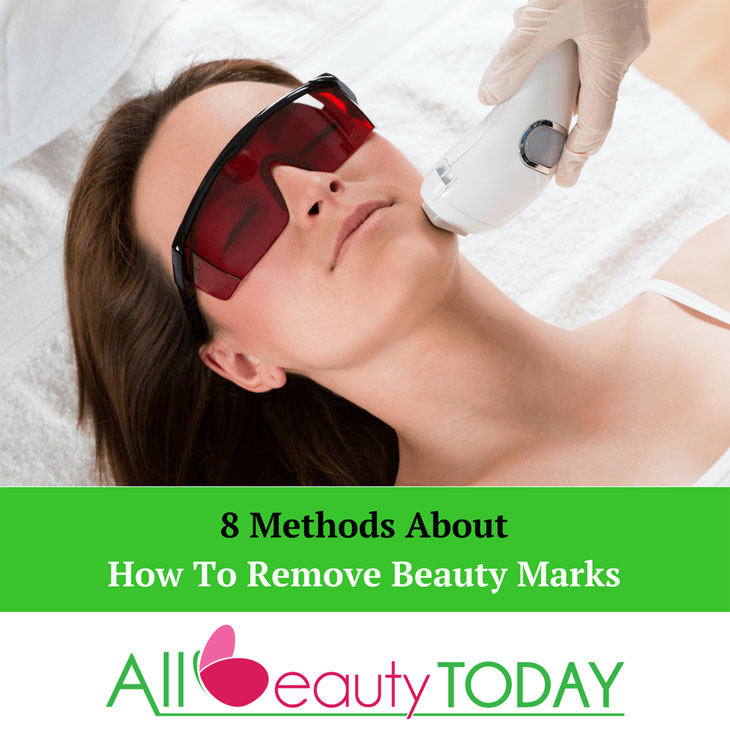 How To Remove Beauty Marks