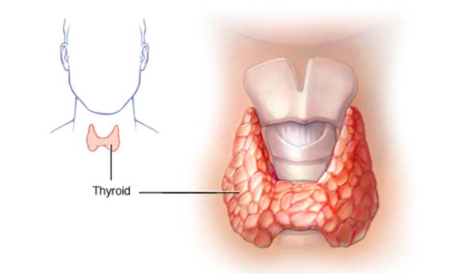 Hypothyroidism  underactive thyroid