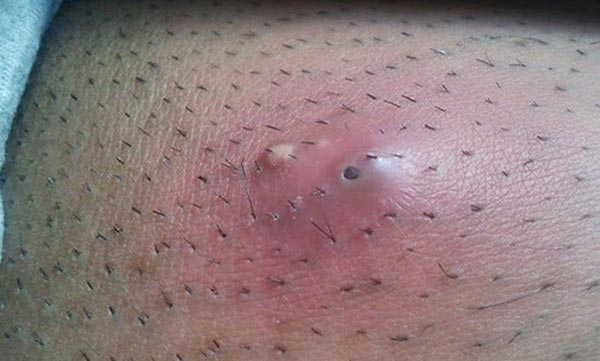 Infected Ingrown Hair