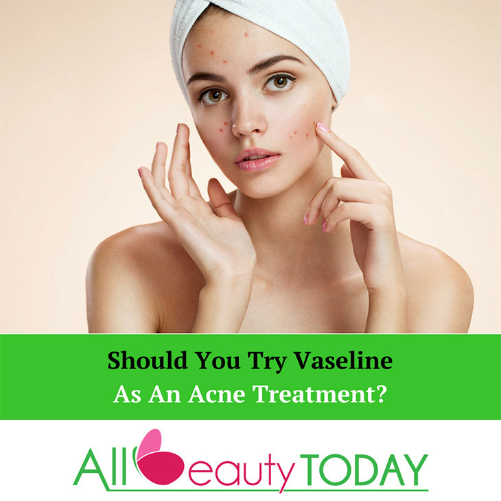 Should You Try Vaseline As An Acne Treatment