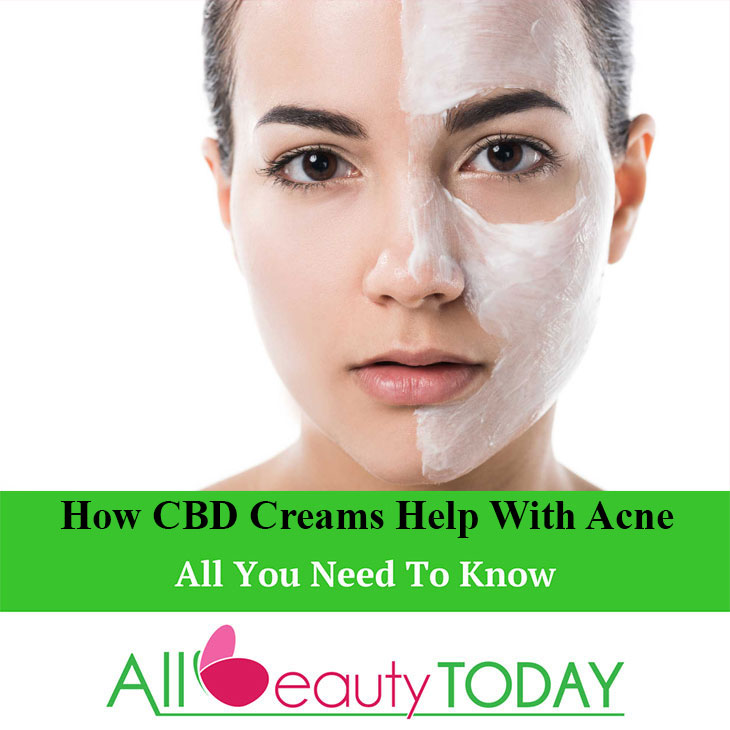 CBD Creams Acne