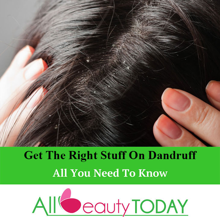 Get the right stuff on dandruff