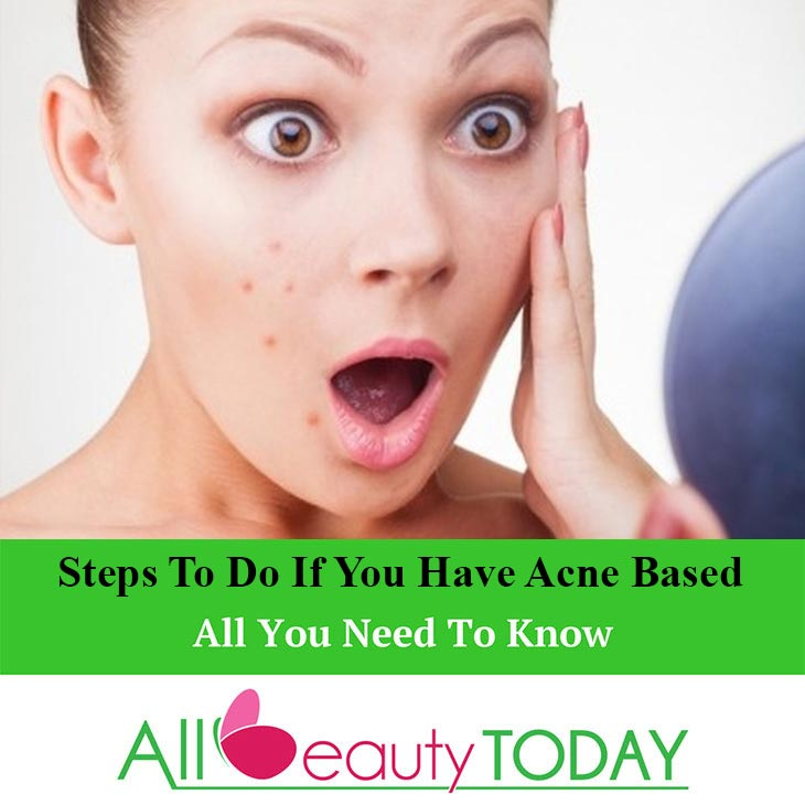 Steps To Do If You Have Acne Based
