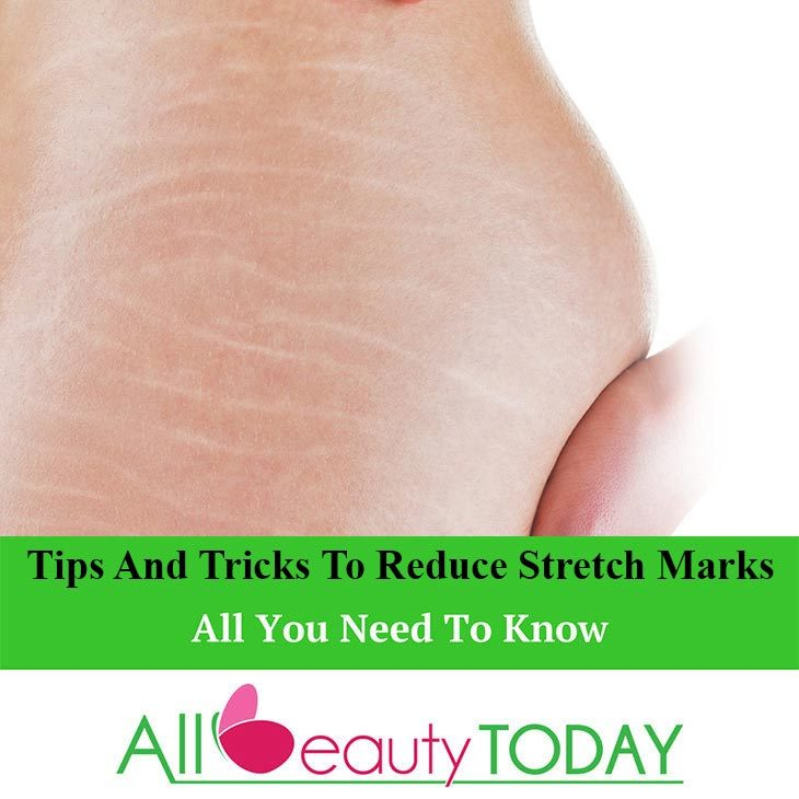 Tips and Tricks to Reduce Stretch Marks