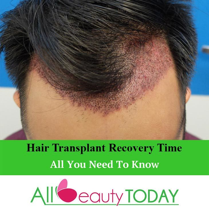 Hair Transplant Recovery Time