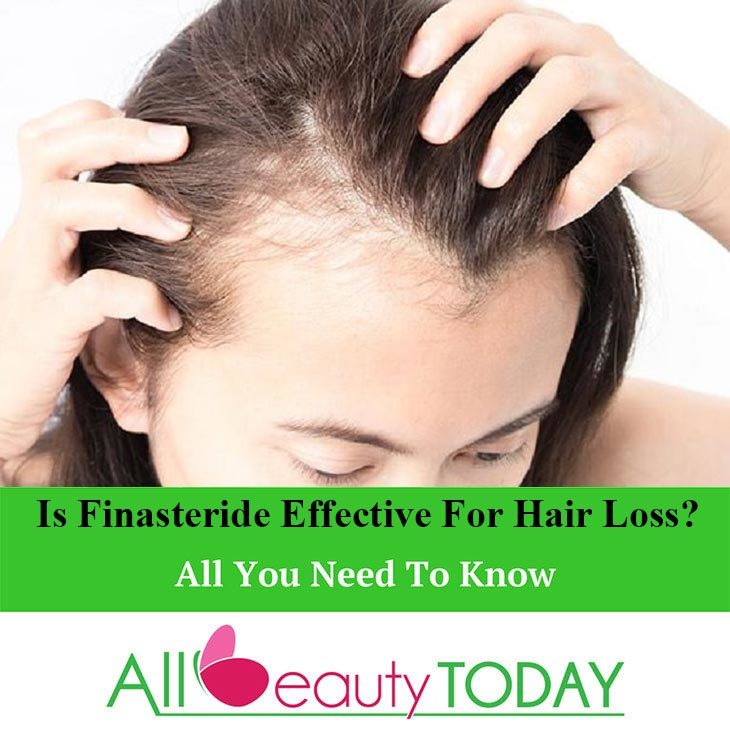 Is Finasteride Effective For Hair Loss?