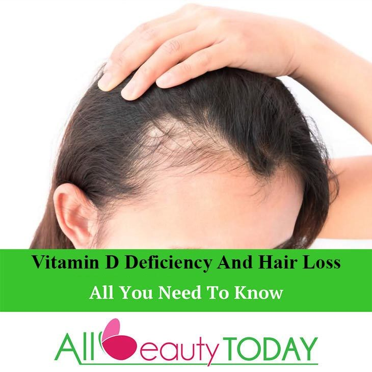 Can a Deficiency of Vitamin D Cause Hair Loss