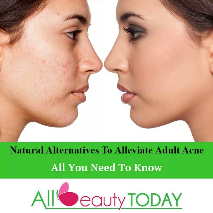 Natural Alternatives To Alleviate Adult Acne